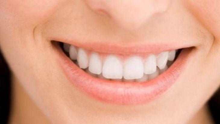 Cara Menghilangkan Sekaligus Mencegah Karang Gigi 2