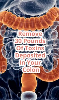 Remove 30 Pounds Of Toxins Deposited In Your Colon