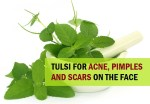 11 Remedies with Tulsi to Treat Pimples and Acne Scars on the Face