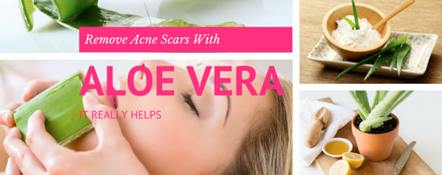 How long Does Aloe Vera Take to Fade Scars? I've Lost this ...