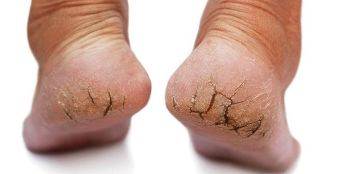 Image result for Cracking the feet