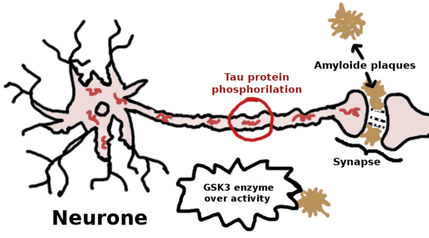 Neurone damaged by GSK3 over activity, tau protein and amyloid plaques - schema
