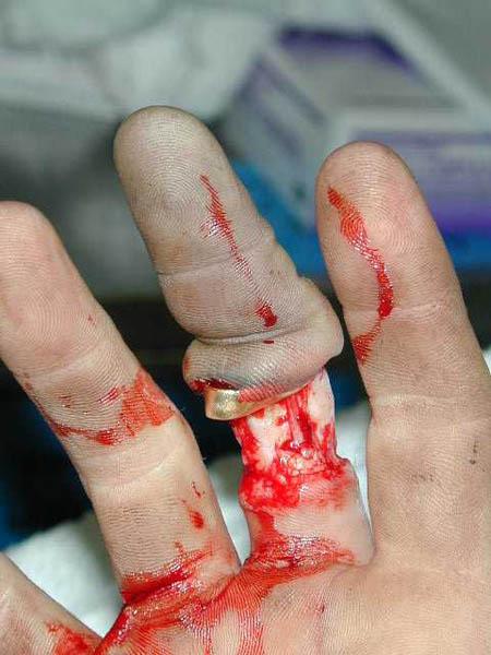 El dedo se queda pero el pellejo se va, y todo por llevar anillo.