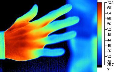Dedos entumecidos por el frío.