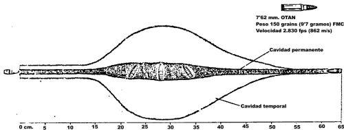 Imagen 3: El proyectil militar 7'62 mm. OTAN cabecea tras 15 cm. de penetración pero no se deforma. La mayor destrucción de tejidos se produce en el lugar donde el cabeceo del proyectil es de 90º (profundidad de penetración de unos 28 cm.) en lugar de en el lugar de mayor velocidad del proyectil (superficie de los tejidos).