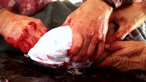 Herida de bala en una pierna