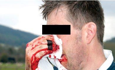 Trauma facial con sangrado