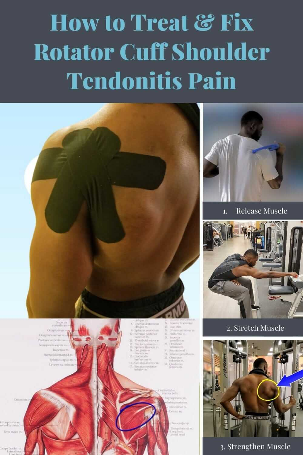 How to treat shoulder rotator cuff tendonitis pain