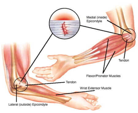 Illustration of elbow tendinopathy | elbow tendon tear