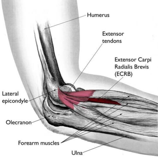 Illustration of tennis elbow lateral epicondylitis extensor tendons and extensor carpi radialis