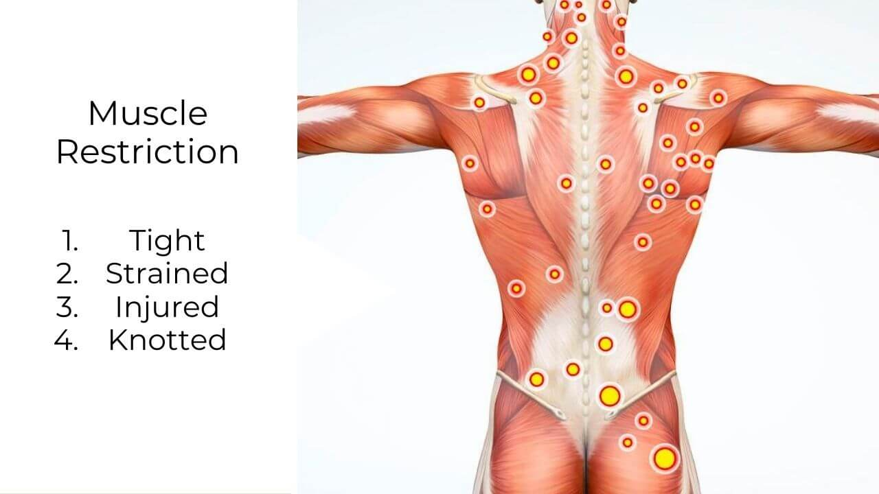 Illustration of musculoskeletal pain and knotted muscle trigger points