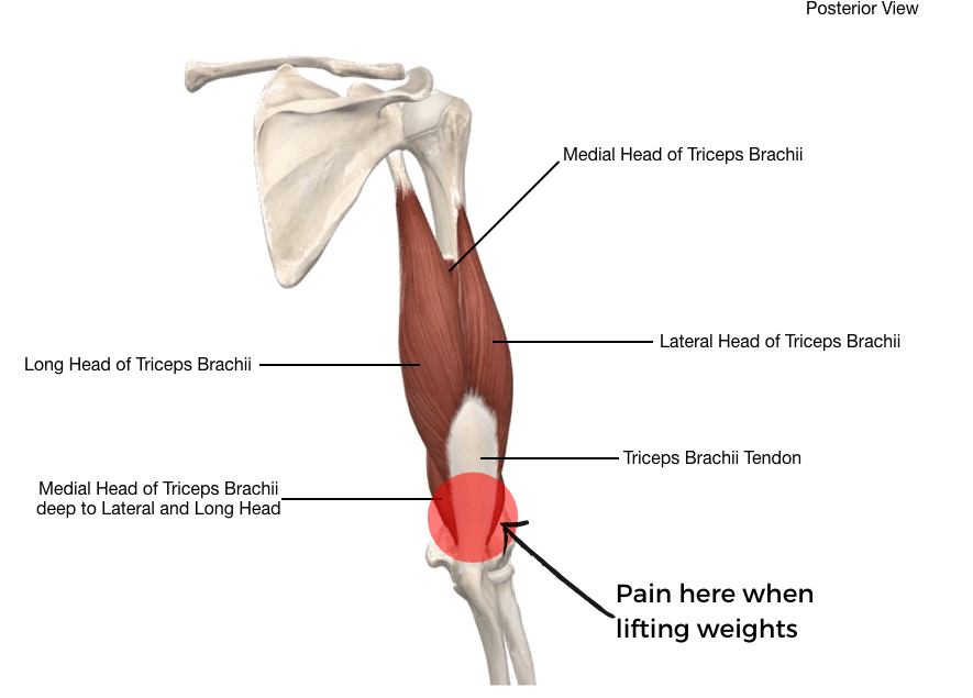 Illustration of posterior elbow pain, tricep tendonitis. Muscles of triceps and triceps brachii tendon.