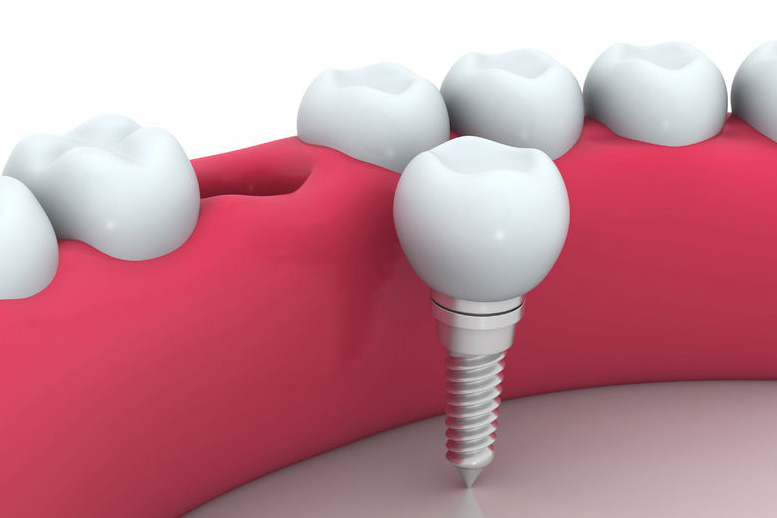 Dental Implants Wayne, NJ