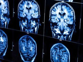 Штучний інтелект вчиться «читати думки» по даних томографії