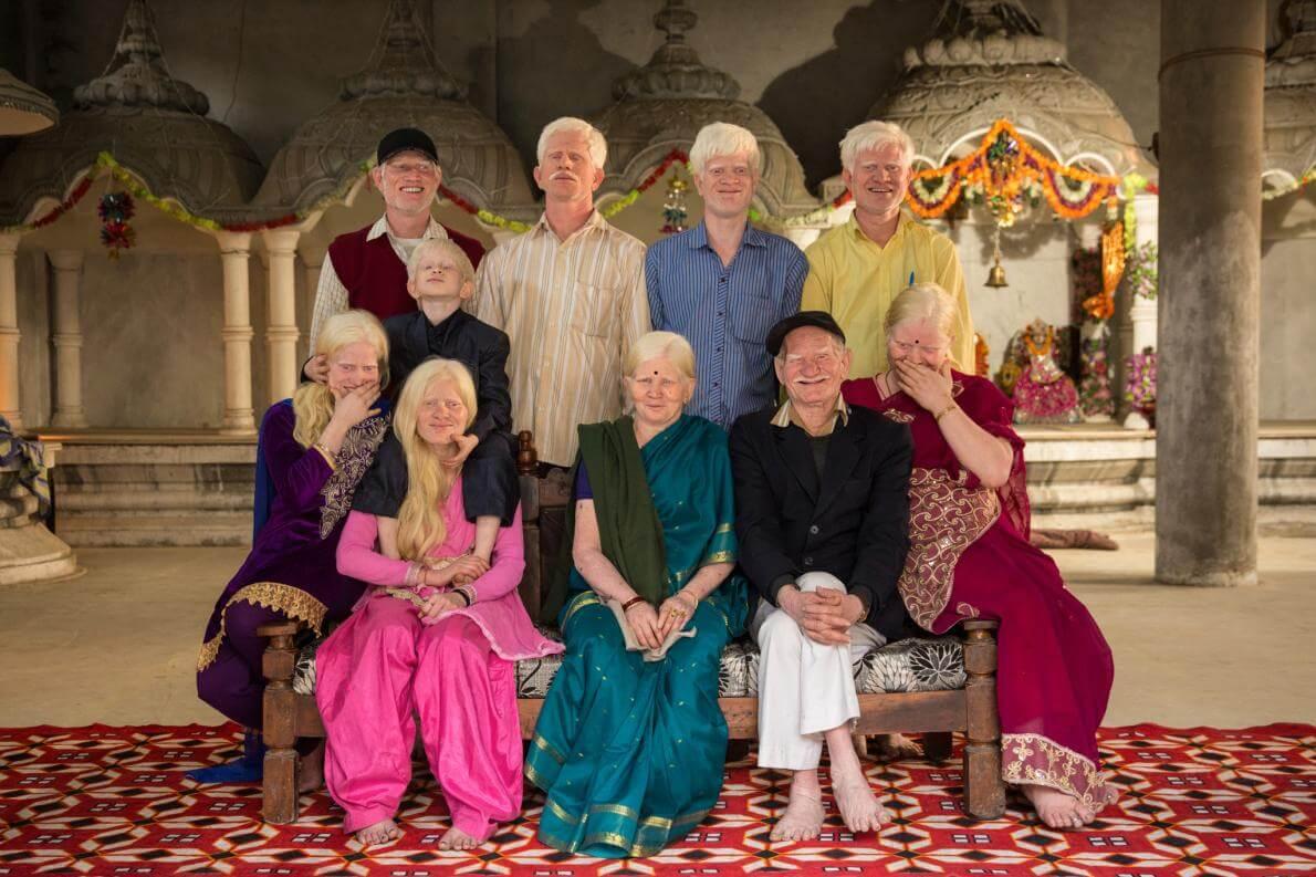 У індуїстському храмі біля свого будинку в Делі, Індія, три покоління сім'ї з альбінізмом роблять рідкісний сімейний портрет.