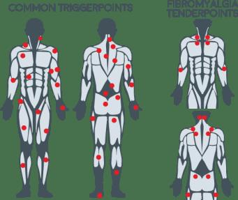 kehossa olevia yleisiä triggerpisteitä esitettynä