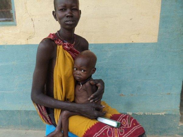 An Tuberkulose erkranktes Kind