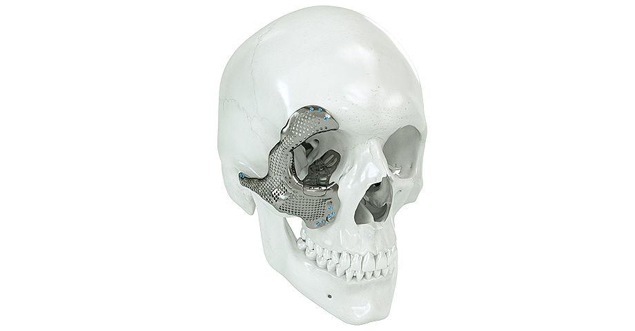 craniomaxillofacial cmf devices market