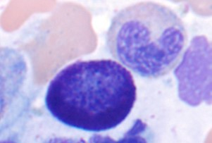 Bone Marrow Biopsy Evaluation for Mast Cell Disorders
