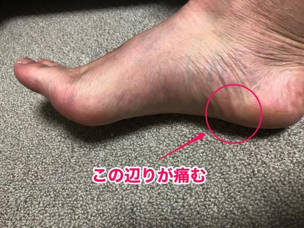 足底筋膜炎