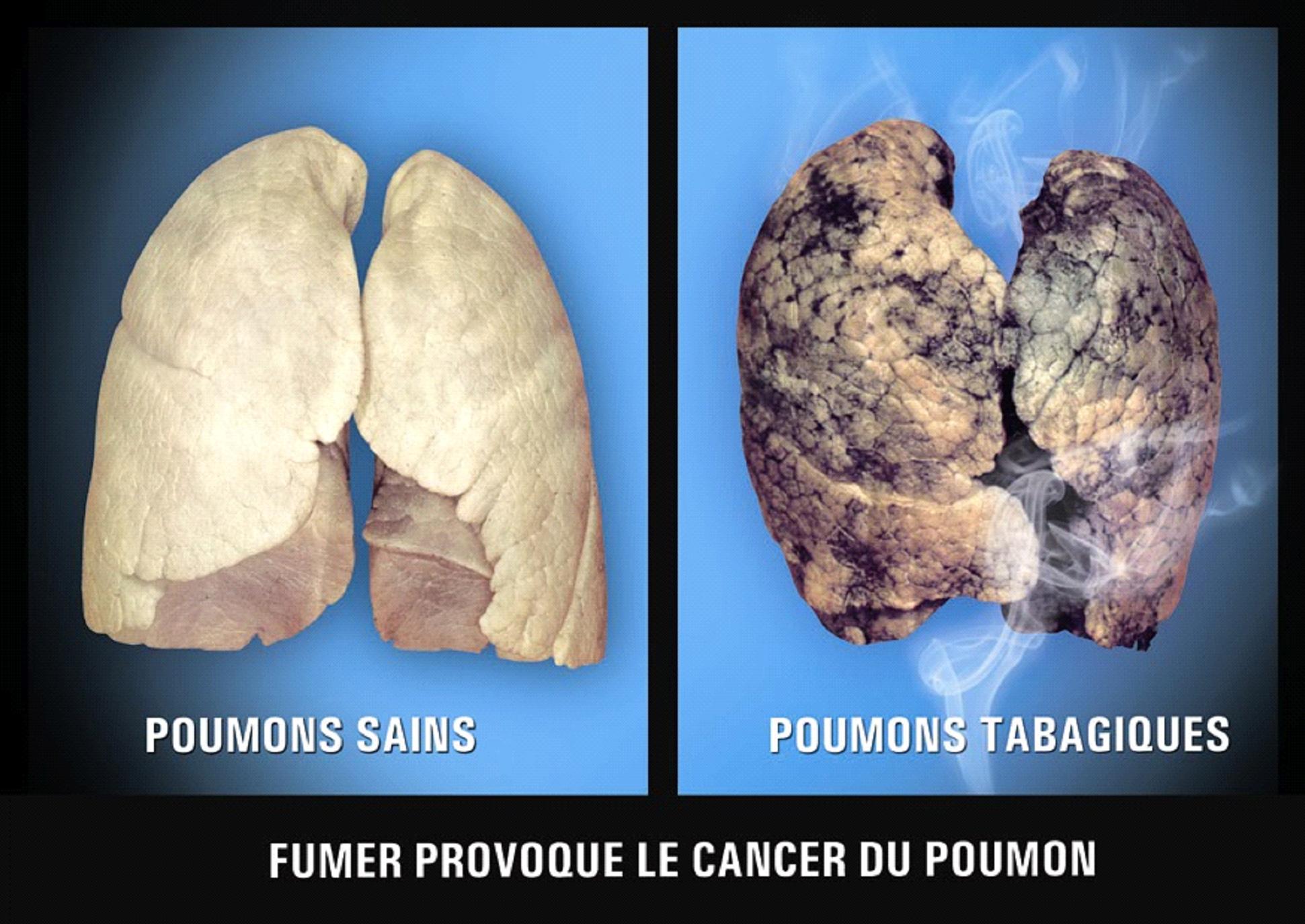 mauritius tobacco labelling regulations