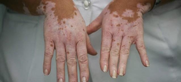 Médicos logran cura para el vitiligo