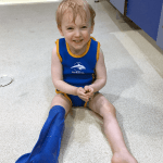 Top tips for surviving with a toddler in a plaster cast