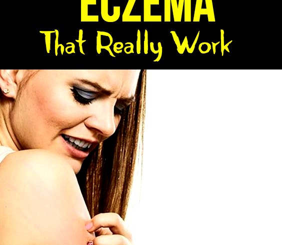 13-Home-Remedies To Get Rid Of Eczema Fast That Really Work