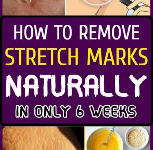 HOW-TO-REMOVE-STRETCH-MARKS-NATURALLY-IN-ONLY-6-WEEKS