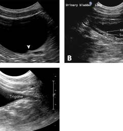 figure 2 long axis sagittal images of the ureteral papilla arrowhead in a [ 1236 x 837 Pixel ]