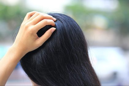 Is It Scalp Psoriasis or Dandruff? Here's How to Tell the Difference