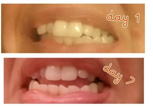 Smile Brilliant LED Teeth Whitening kit review and giveaway