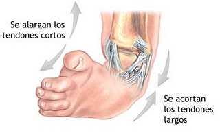 ¿Qué es el pie bot? Traumatología
