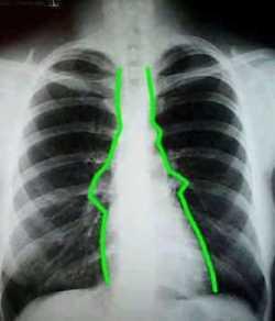 Enfermedades del mediastino Anatomía