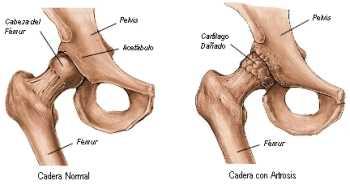 Artrosis de cadera Reumatología