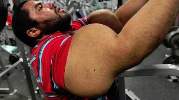 synthol-abuso-deforma-musculos