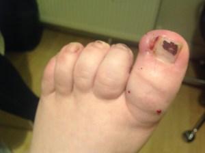 Ingrowing nail
