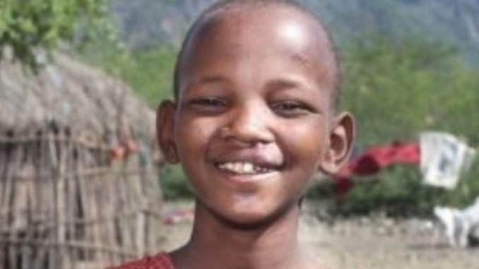 Smile Train lorganisation qui change les enfants sourire apres sourire Smile Train, l'organisation qui change les enfants « sourire après sourire »