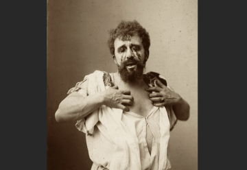 An actor dresses as Oedipus with his eyes made up to look gouged out.