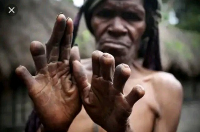 Women Cut Their Fingers