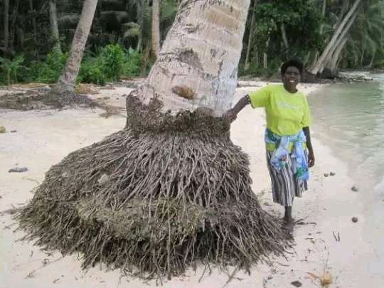 The Power Of Coconut Roots - It Can Get Rid Of All Urinary Tract Infections And 3 Other Diseases