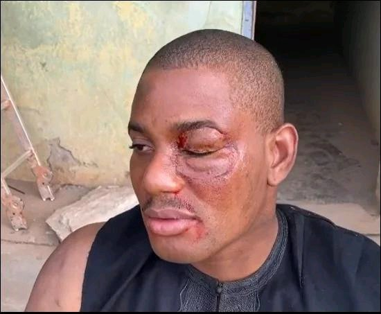 OMG!!! Alex Ekubo Beaten To A Pulp - See How Pitiful He Looks
