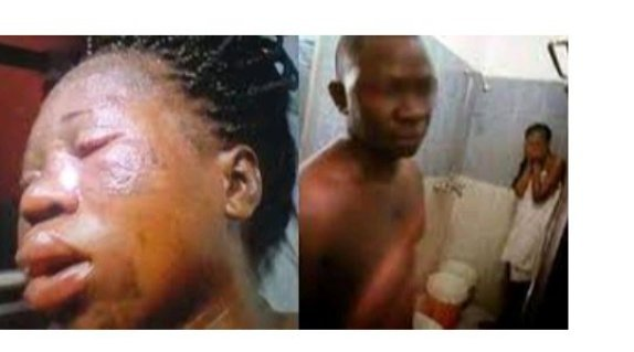 Yawa As Wife Pures Hot Water On the Face of A Lady She Caught Cheating With Her Husband