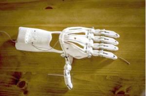ortopedia con impresora 3D