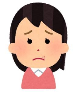 皮疹のお話 ⑧ 口唇ヘルペスについて【田所クリニック 田所 丈嗣(医学博士)】(180号)