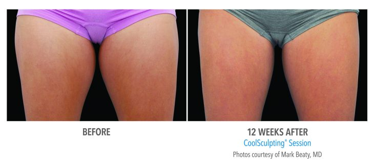Female Inner Thigh Before & After