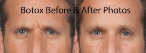 Before and After photos of Botox Treatments