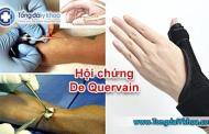 Các phương pháp điều trị hội chứng De Quervain