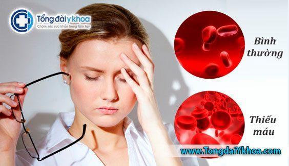 Thiếu máu là gì? Nguyên nhân gây thiếu máu và cách điều trị?