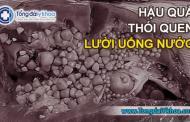 Bệnh viện Việt Đức cảnh báo: Lười uống nước có thể khiến bạn phải cắt thận